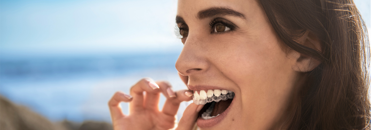 Image for Lonsdale Dental Centre, Tunbridge Wells' Invisalign Open Day